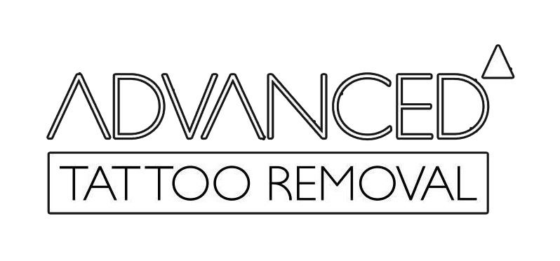 Advanced Tattoo Removal coupon code